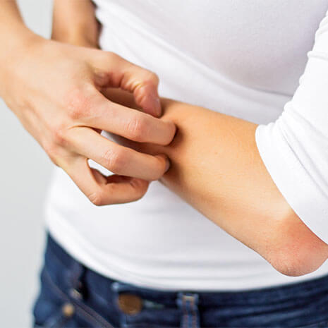 Eczema Care